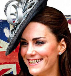 Duchess Kate, Duchess of Cambridge, kate middleton teeth, kate middleton rotten, kate middleton controversy,